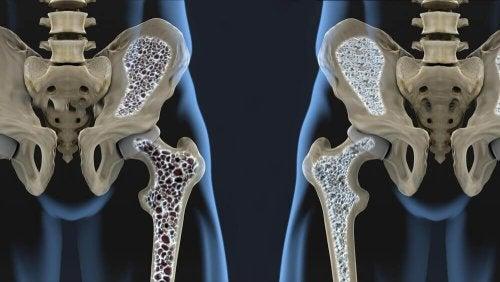 骨粗しょう症を予防する食生活の6つのヒント