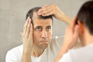 脱毛症と生活への影響