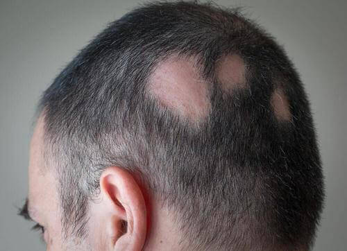 脱毛症に効果的な自然療法