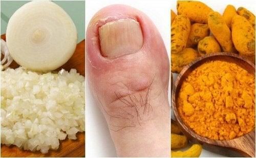 爪のささくれからくる炎症を抑える6つの自然療法