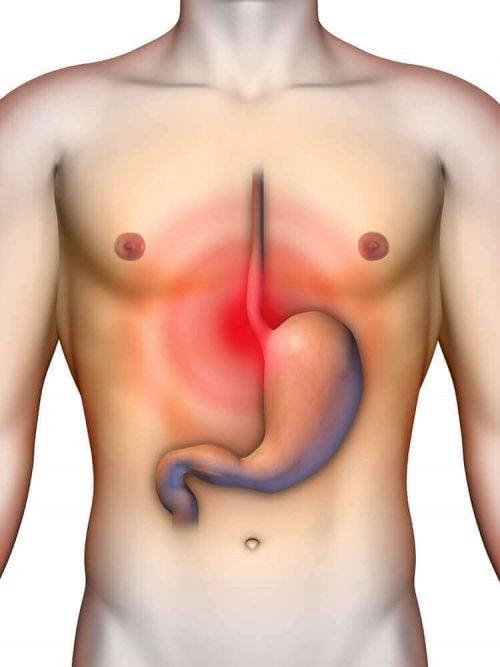 逆流性食道炎を和らげる4つの自家製制酸剤