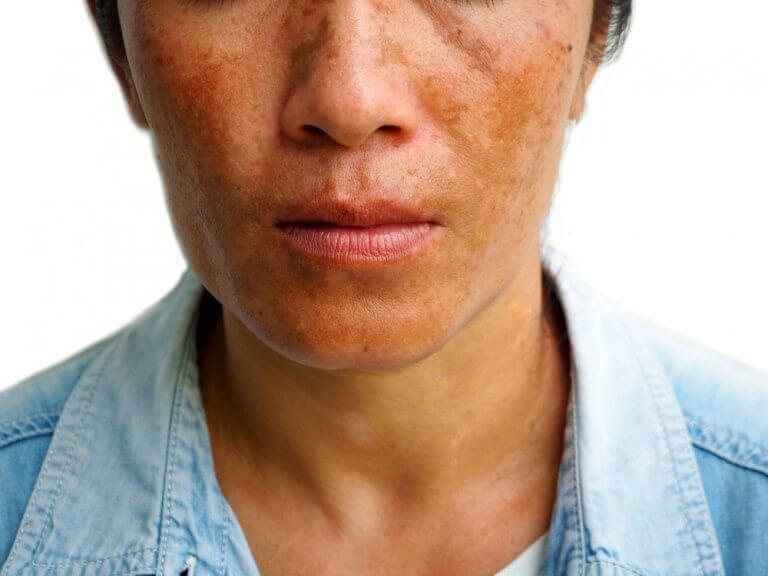 黒皮症の軽減に役立つ3つの治療法