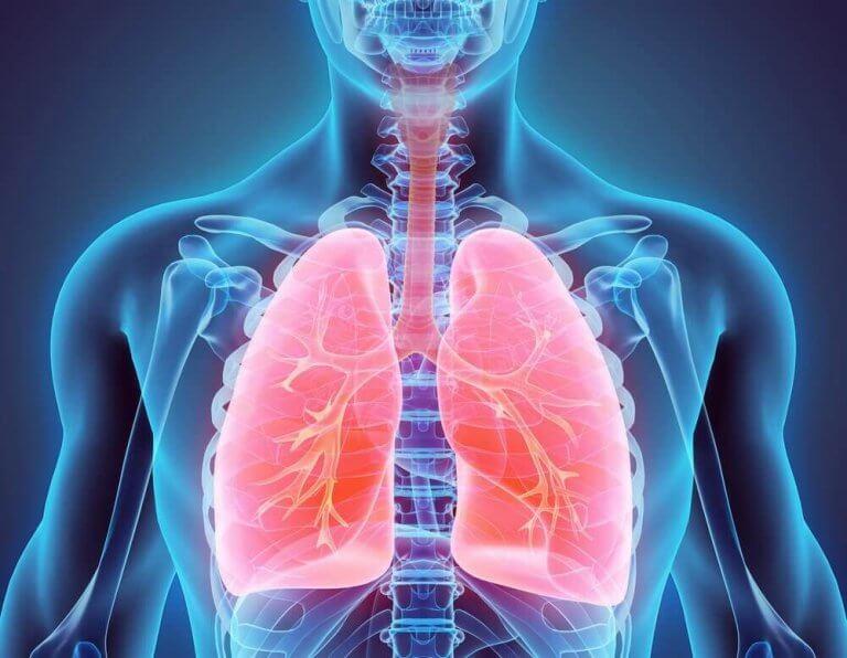 気管支拡張症について知っておくべきこと