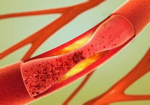 動脈を健康に保つ方法