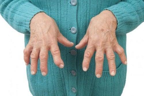 関節リウマチを緩和する自然療法