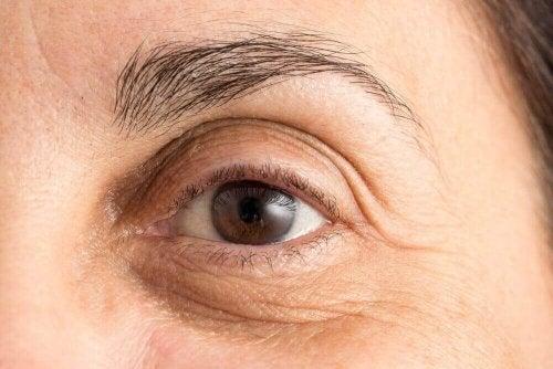 目の下のクマを最小限に抑える自然療法