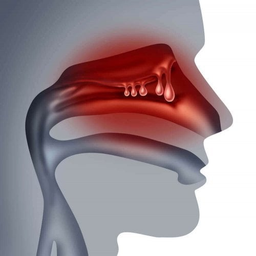 鼻ポリープに効果的な自然療法