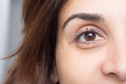 絶対に失敗しない目の腫れとクマの予防法