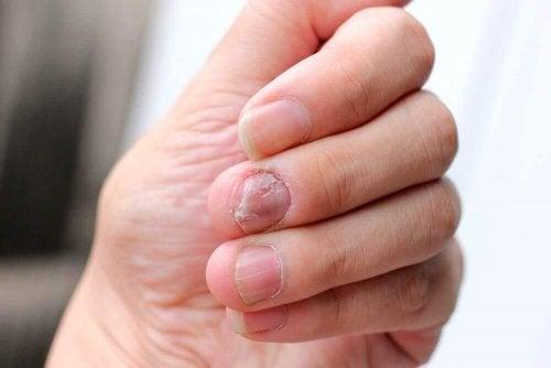 爪乾癬に効く5つの自然療法