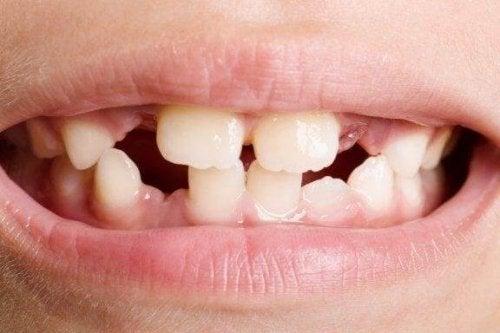 歯の形成障害  種類と治療法