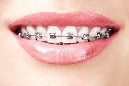 歯列矯正 歯の形成障害