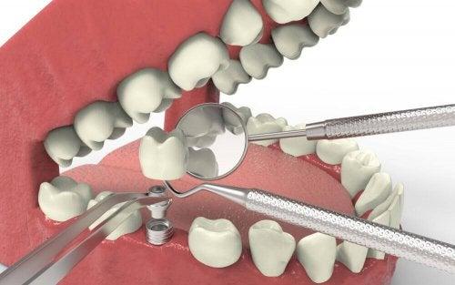 インプラント 歯の形成障害