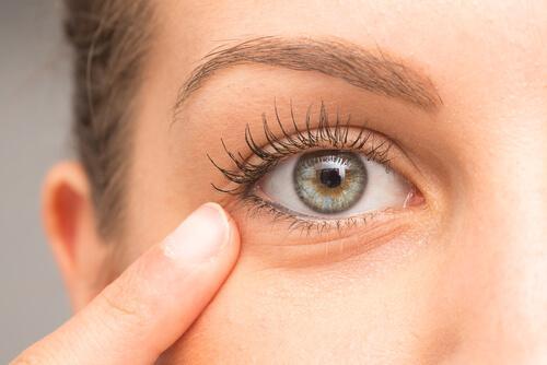 目のクマを緩和する自然療法