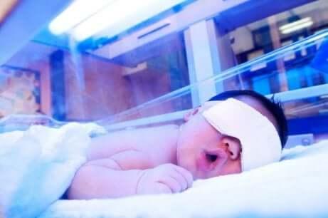 新生児黄疸 症状 治療法
