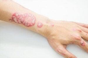 腕の乾癬 乾癬の治療に役立つハーブ