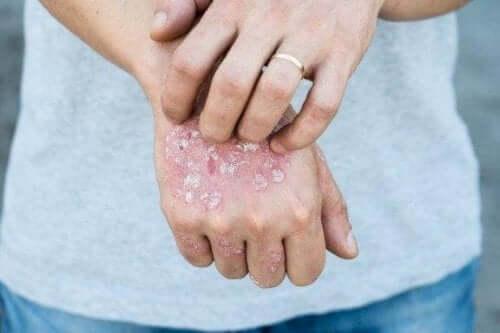 局所的な乾癬の治療に役立つハーブ5種