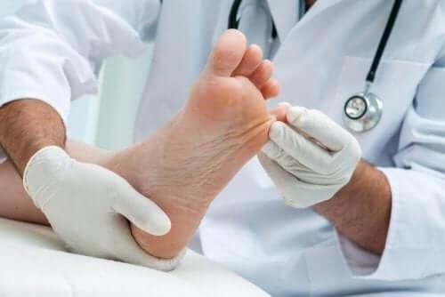 表在性真菌症を自然に治す7つの自宅療法