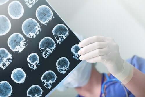 アルツハイマー病と認知症の進行