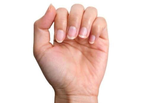 爪 黄ばみ
