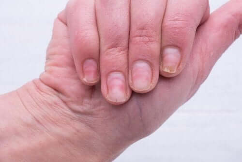 爪の黄ばみを解消したい!効果的な3つの自然療法