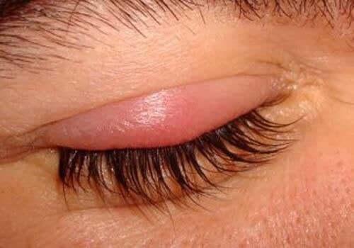 眼瞼炎の原因
