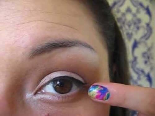 まぶたの端の炎症である眼瞼炎