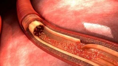 大動脈解離:症状、原因、予防について