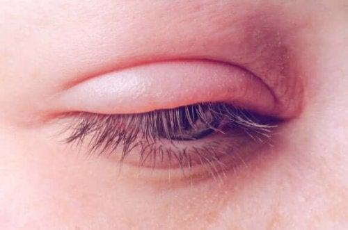 眼瞼炎:原因、症状、治療法