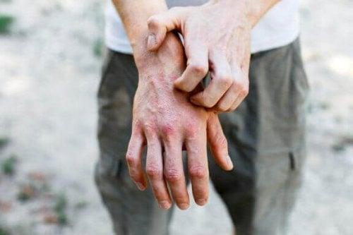 接触皮膚炎に効く家庭療法6つ