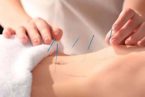 知っておくべき鍼治療の利点