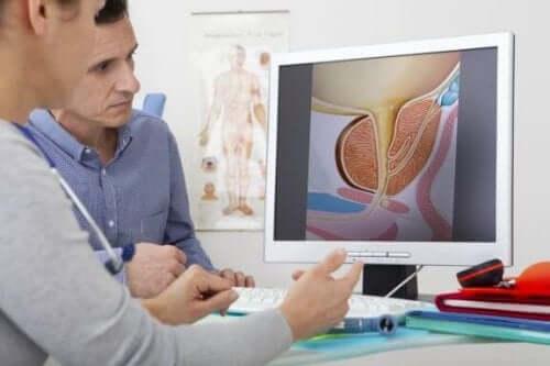 前立腺肥大症の治療について