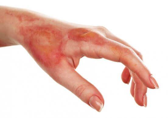 軽度の火傷の痛みを自然に緩和する方法