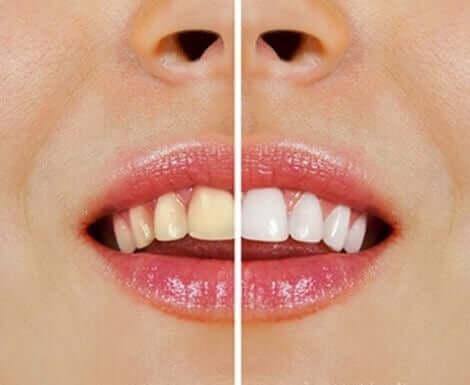 天然素材を使った歯のホワイトニング法