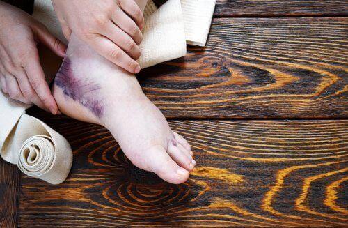 足首をねんざした時の対処法