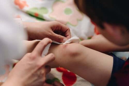 子どもの怪我 傷の縫合