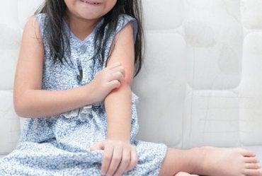 子どもが乾癬になったらどうする?