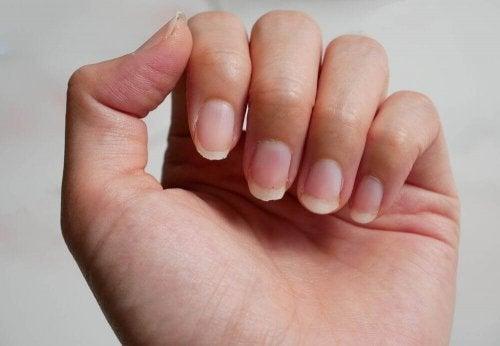 爪を美しく強くする9つの自然療法とは?