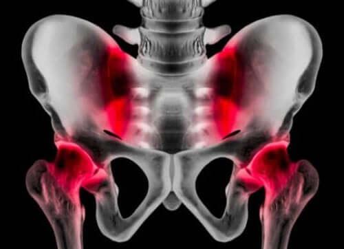 スポーツヘルニア:原因、症状、治療法
