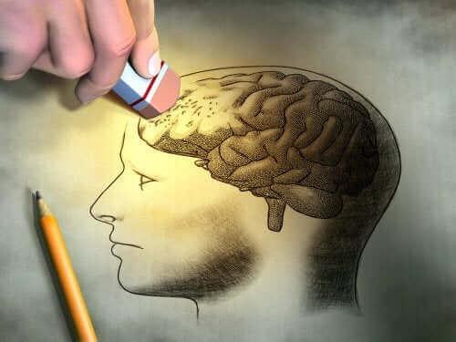 脳 健忘症の症状と予防法