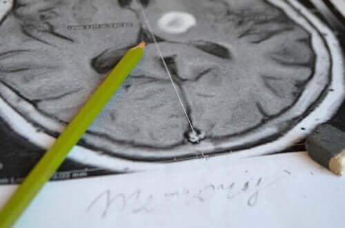 理解を深めよう!健忘症の症状と予防法