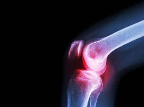 非ステロイ ド抗炎症薬:アセクロフェナクの効果について 膝の関節リウマチ