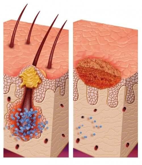 多発石灰化上皮腫症候群の診断