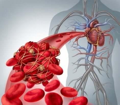 深部静脈血栓症