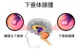下垂体腺腫:その原因と症状