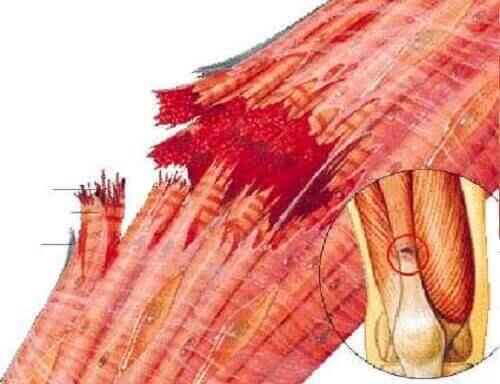 損傷の度合いによって異なる筋挫傷の症状と治療法 筋肉の図解