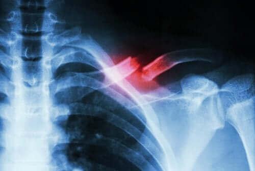 どこで起こる?疲労骨折の原因と症状 鎖骨のレントゲン