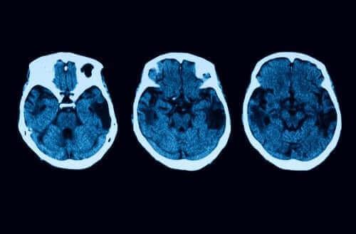後部皮質萎縮症の診断と治療について