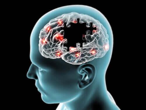 砂糖が精神力を改善するってホント? 脳の構造