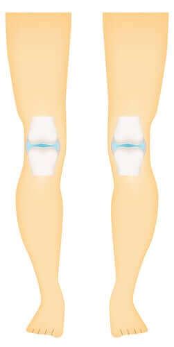 関節の健康を守ろう!滑膜関節とその特徴について