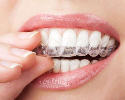 透明の歯科矯正装置:クリアアライナーについて 歯に装着する女性
